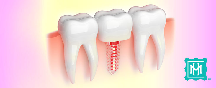 dental-implants-2
