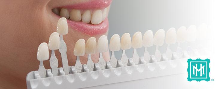 cosmetic-teeth-whitening-2