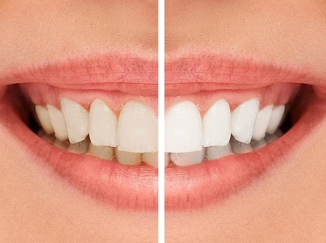 cosmetic-teeth-whitening