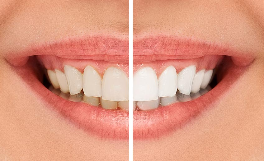 Light Up The Room Teeth Whitening