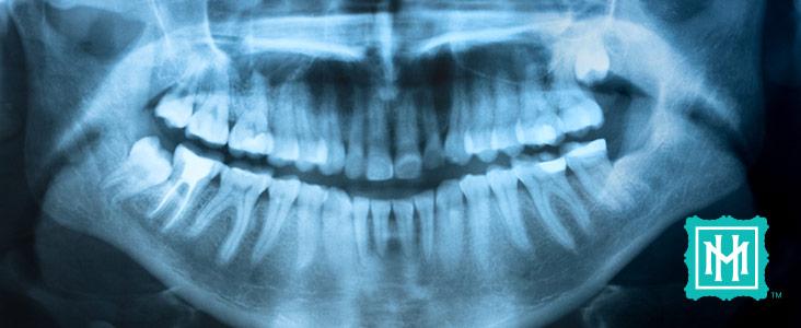 periodontal-02